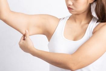 Comment traiter le relâchement des bras et les raffermir sans chirurgie avec l'EMSCULPT NEO®