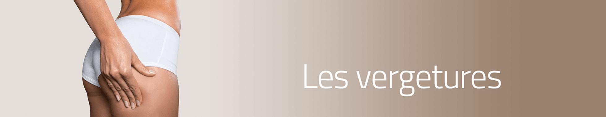 Traitement des vergetures à Aix-en-Provence
